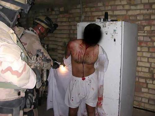 Iraqi torture victim