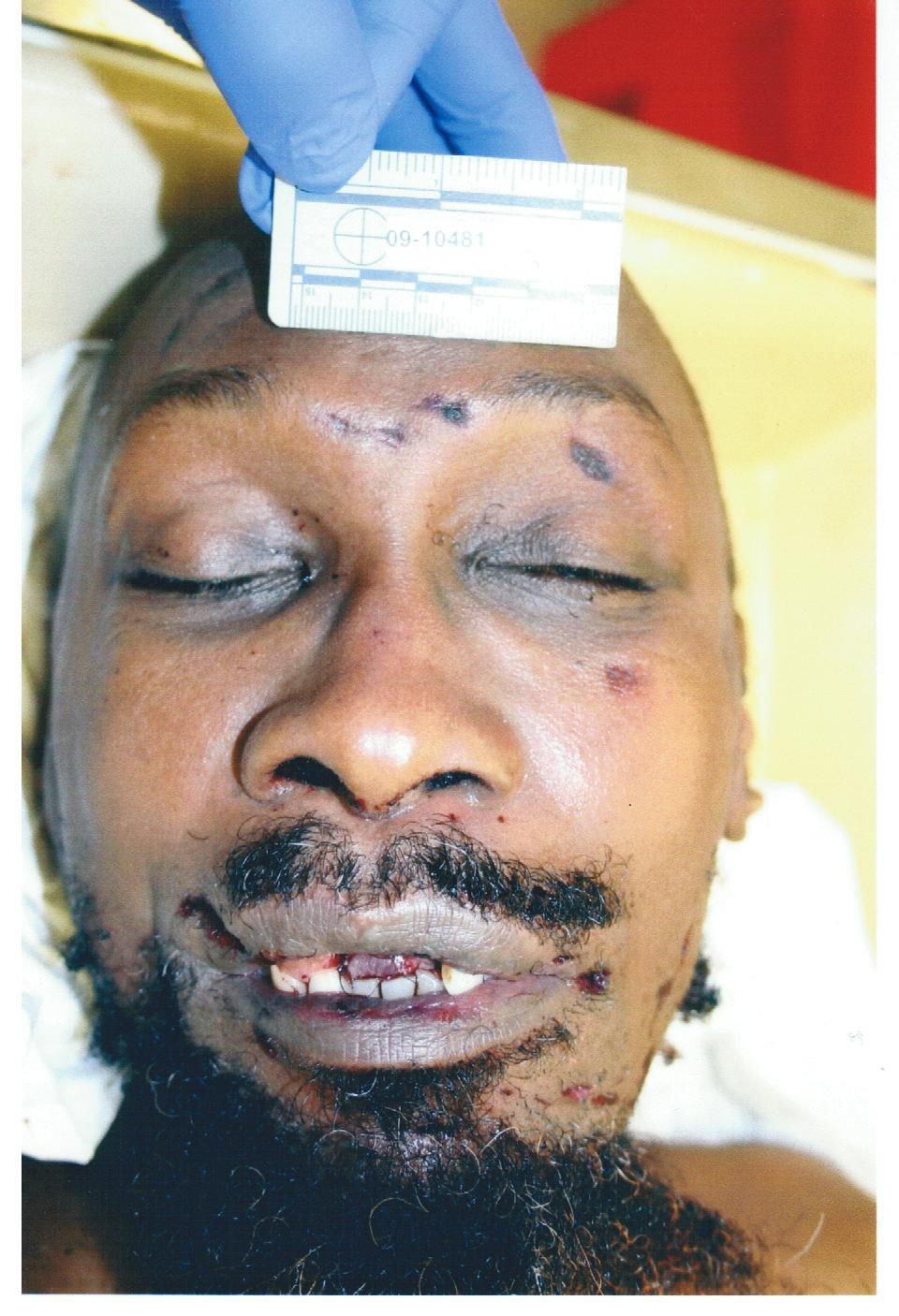 Autopsy Photos Of Imam Luqman Ameen Abdullah likewise Lowell Observatory Wants Asteroid Named After Trayvon Martin moreover 110793 also Diaporama 4023 Photo 752937 Retour Affaire Rey Maupin furthermore Dsr Les Mureaux Simposent Face Aux Gobelins Et Accedent A La Dh 14928. on amadou diallo